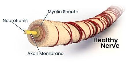 neuropathy nerve with myelin sheath