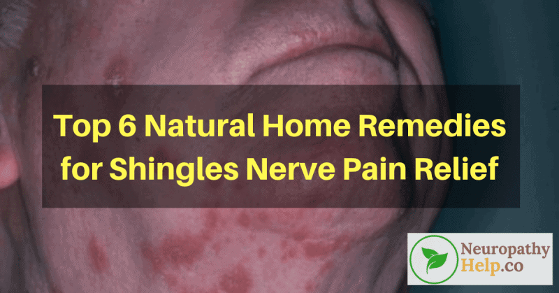 Top 6 Natural Home Remedies For Shingles Nerve Pain Relief