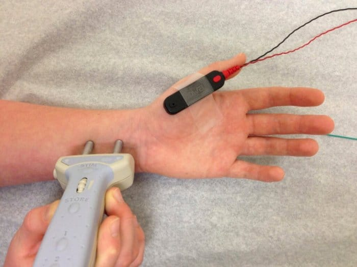 Nerve conduction test on a man's left hand