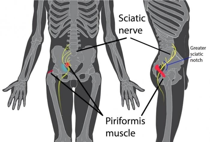 sciatic neuropathy diagram