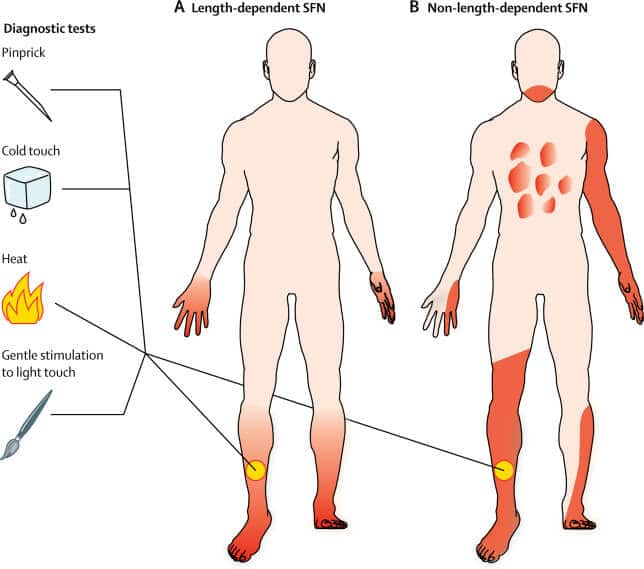 The challenges with small fiber neuropathy diagnosis