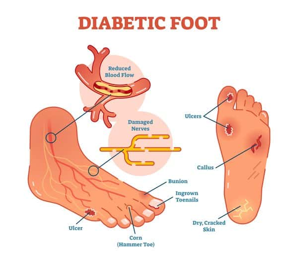 An illustration of a diabetic foot with damaged nerves and reduced blood flow